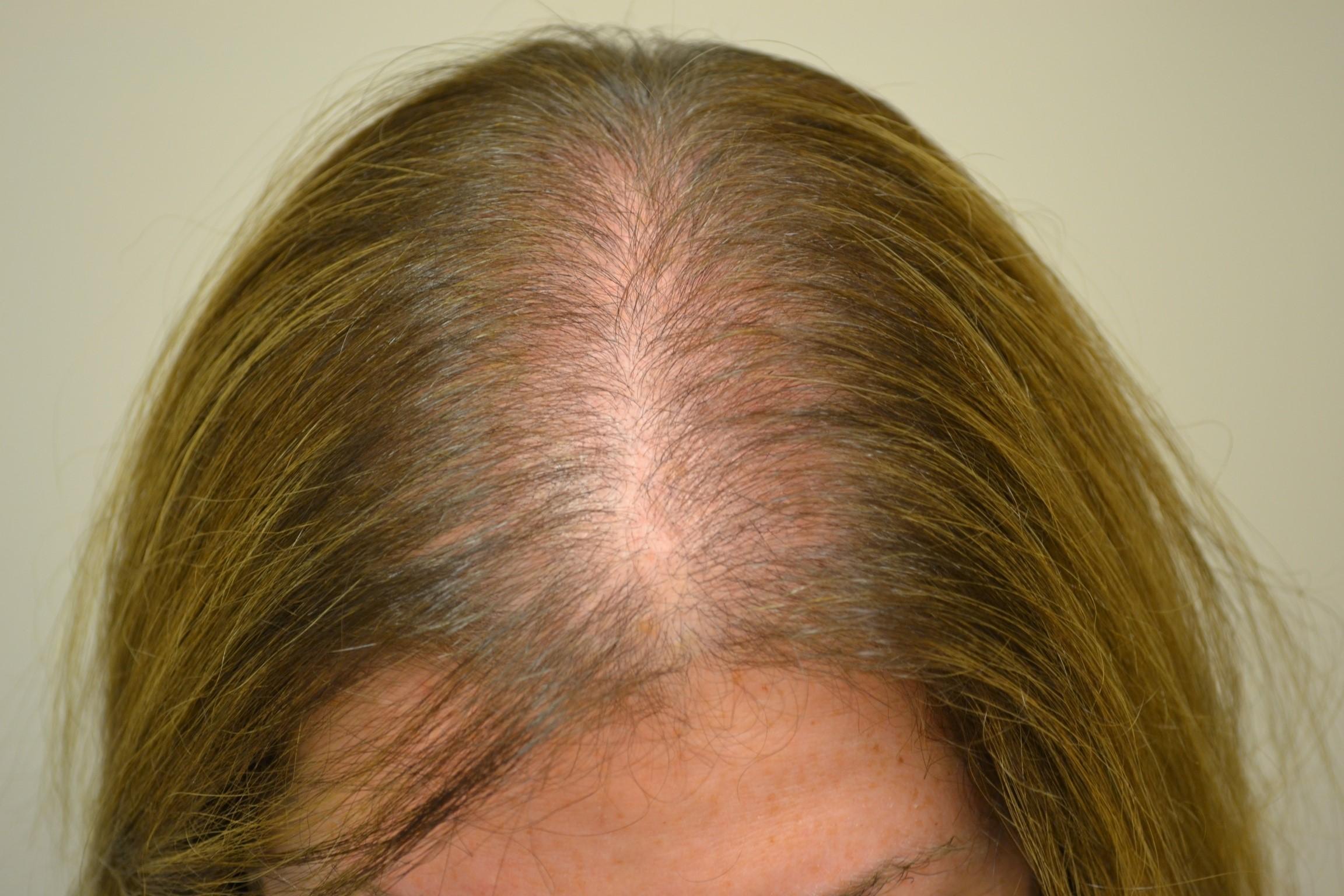 Alopecia Areata Natural Treatment